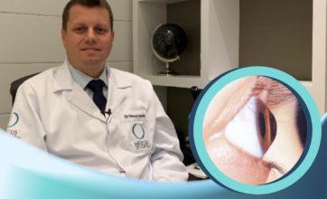 Ceratocone: causa, diagnóstico e tratamento, por Dr. Marcelo Mendes