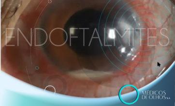 Videoaula Endoftalmites | Com Dr. Rafael de Angelis