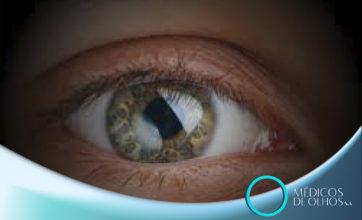 VIDEOAULA | Estudo de artigo de Glaucoma, com Dr. Luis Eduardo Provensi
