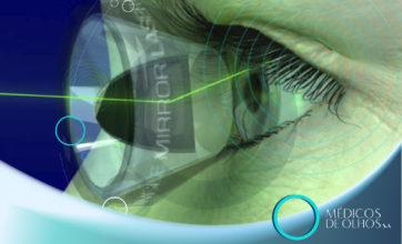 VIDEOAULA | SLT para glaucoma ou colírios? Com Dr. Renato Germano
