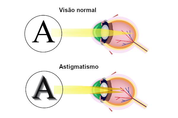 olho normal e olho com astigmatismo