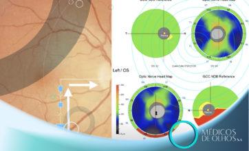 Videoaula Glaucoma | Dr. Hamilton Moreira