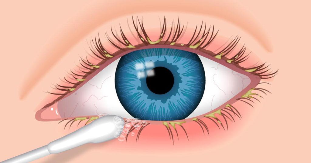 olho com blefarite