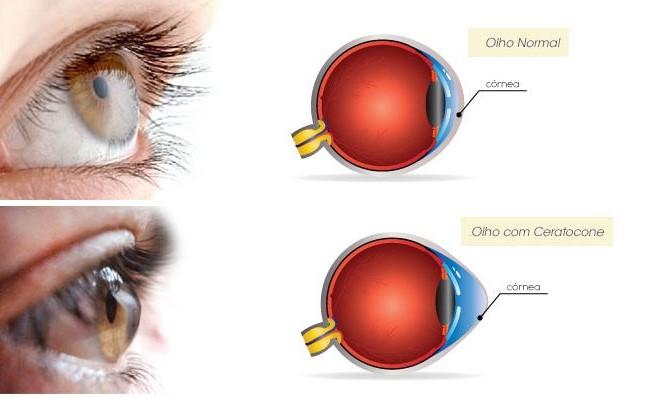 Um olho normal e outro olho com ceratocone