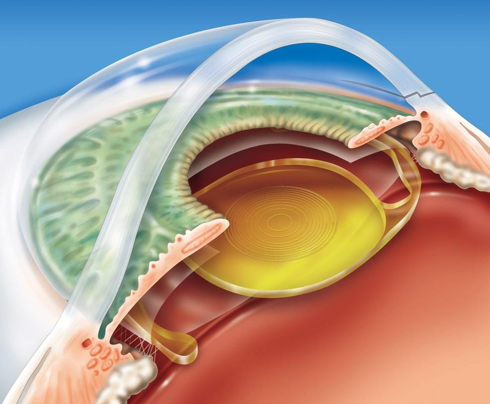como as lentes intraoculares ficam inseridas dentro no olho, na cirurgia
