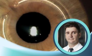 Implante de anéis            intra-estromais com Dr. Evandro Diniz | Parte II