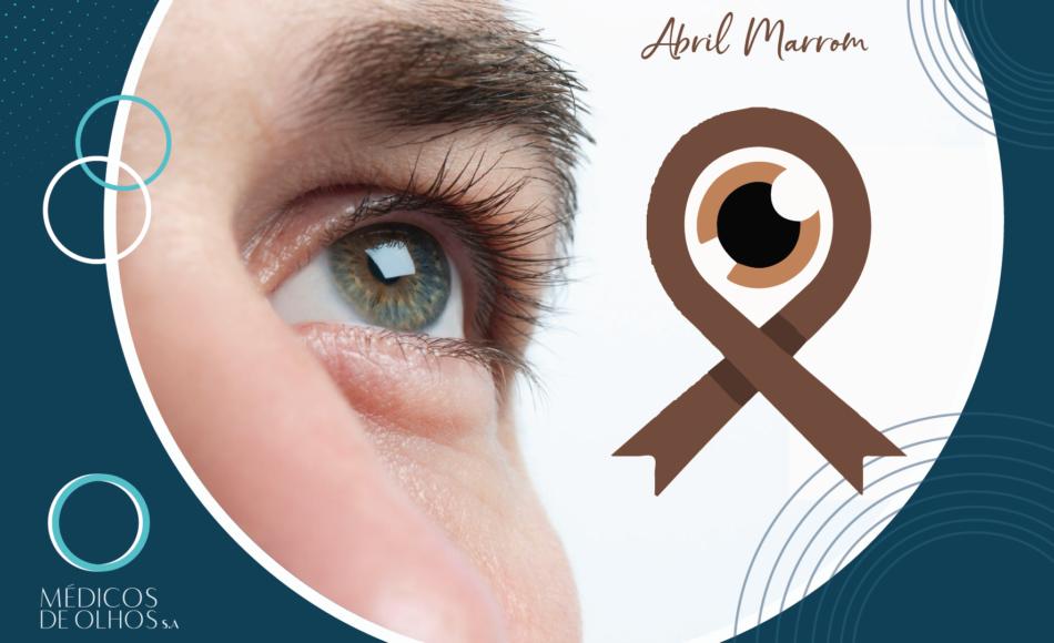 Abril Marrom: mês dedicado a campanha de alerta ao combate à cegueira