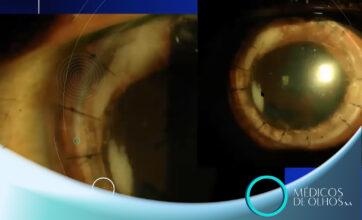 Webinar | Atualização em Transplantes Lamelares, com Dr. Nicolas Cesario Pereira