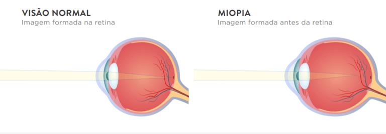 Visão normal e visão com miopia