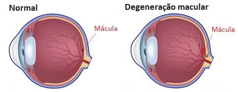 Degeneração Macular Relacionada à Idade (DMRI) - o que é, sintomas e tratamento