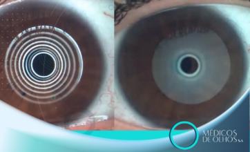 Conexão Médicos de Olhos | Por que usar o Contoura, F-Cat e Topoguiada?