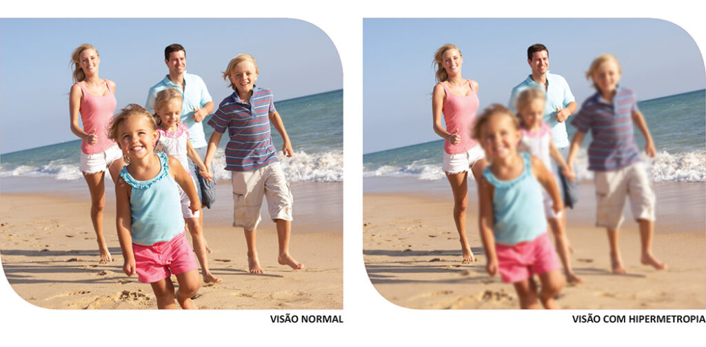 visão normal e visão com hipermetropia