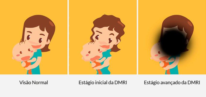 Visão normal e visão com DMRI - Degeneração Macular relacionado à Idade